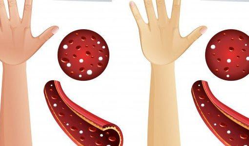 симптоми на анемия